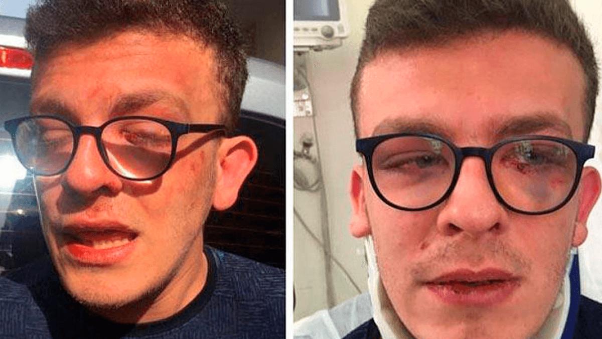 Otizmli Genci Öldüresiye Döven Saldırgan Serbest